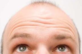 Baldness2